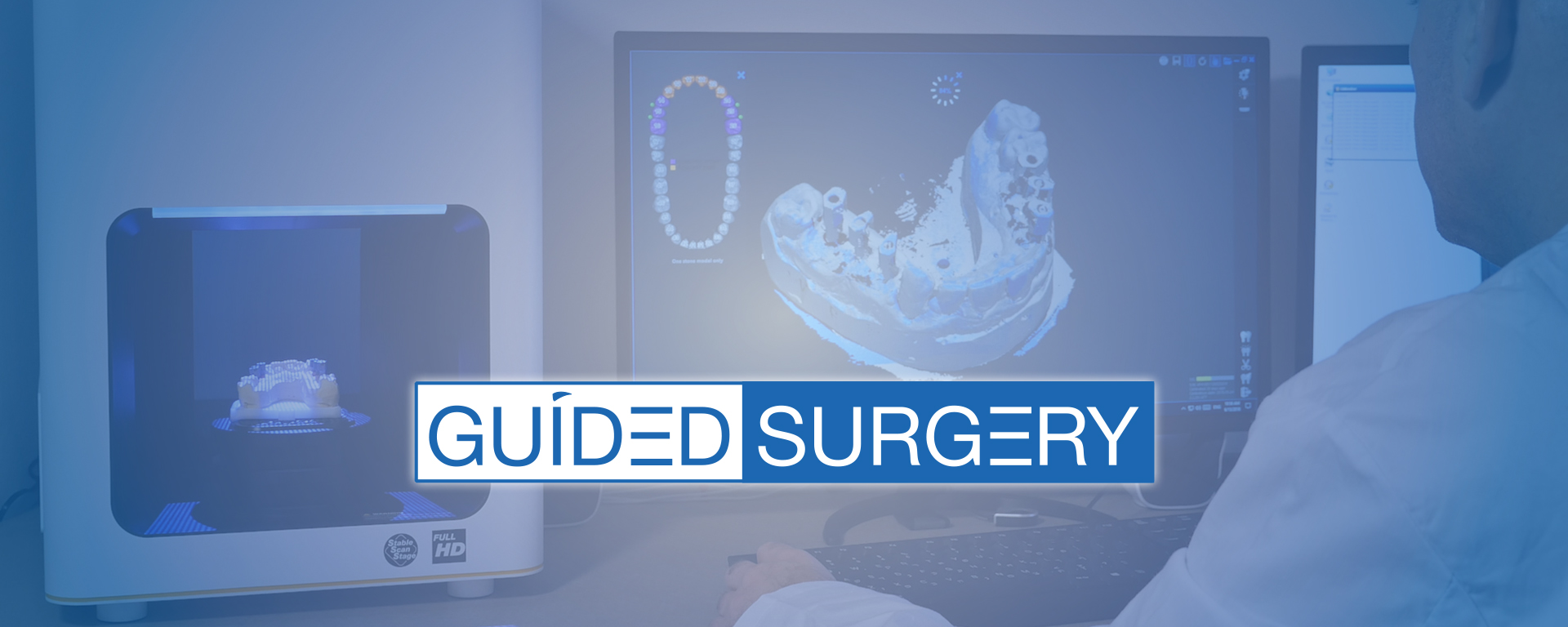 Guided Surgery by Cortex